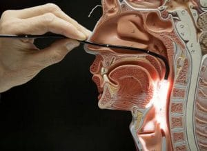 How do Vocal Cords Work doctors look at cords through scope